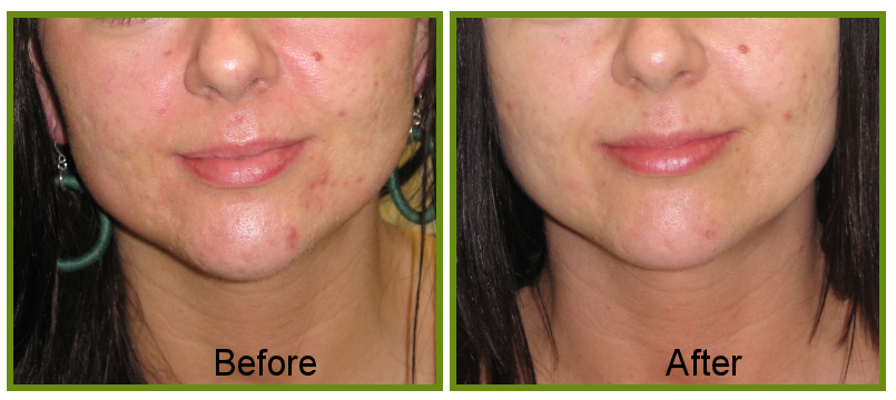 ACNE SCARRING TREATTS | the LASERINA clinic | Manchester