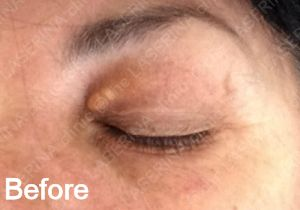 Skin Tags, Milia and Xanthelasma Removal | the LASERINA clinic