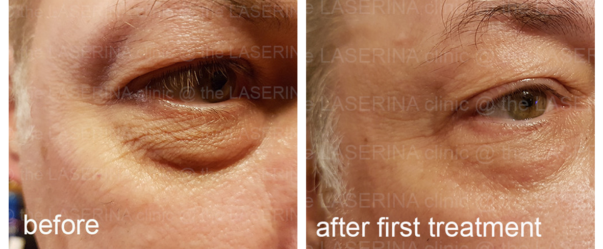 PLASMA SKIN TIGHTENING | the LASERINA clinic | Manchester