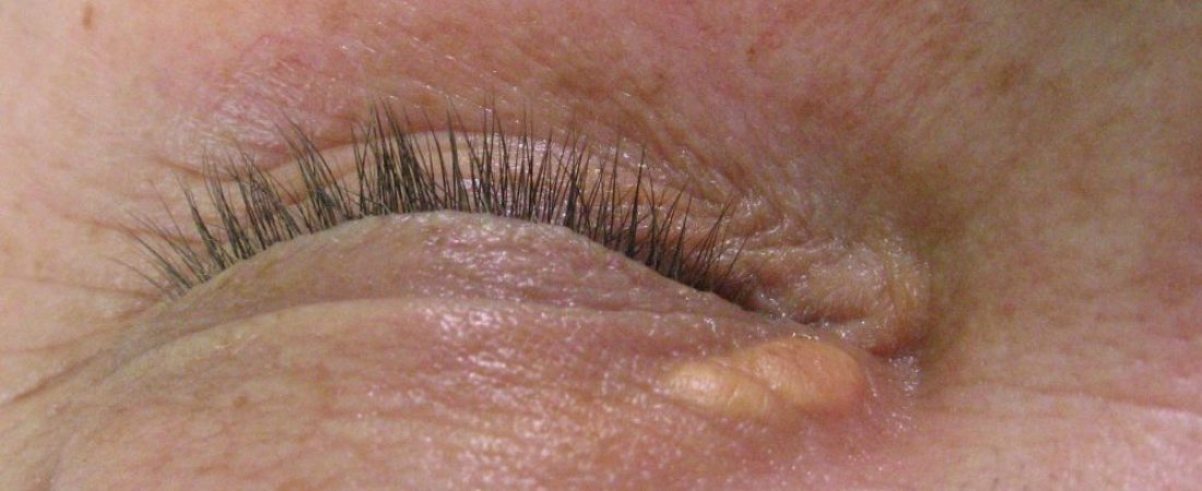 Xanthelasma course, myths and treatment advantages.