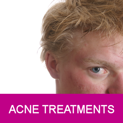 acne therapies
