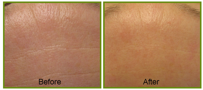 deep skin therapy result
