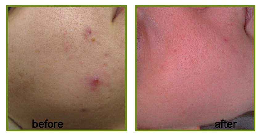 result of microneedling acne treatment
