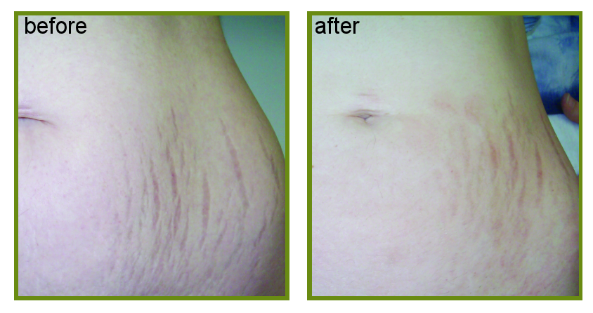 dermapen treatment result for stretch marks