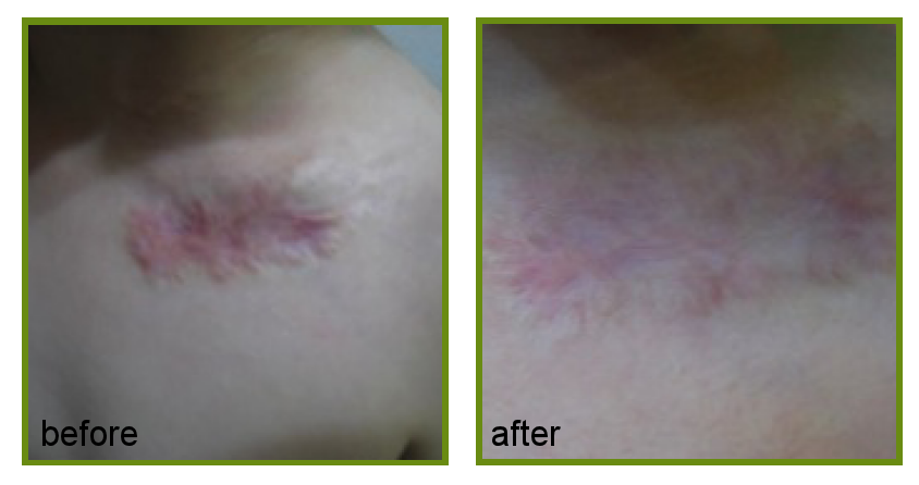 dermapen treatment for scarring