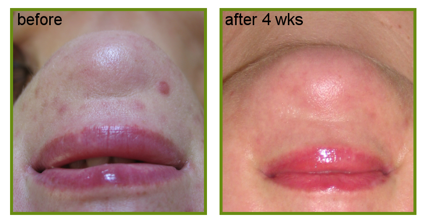 result of misconeedling for acne scarring