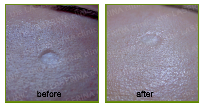 result of scarring treatment with dermapen