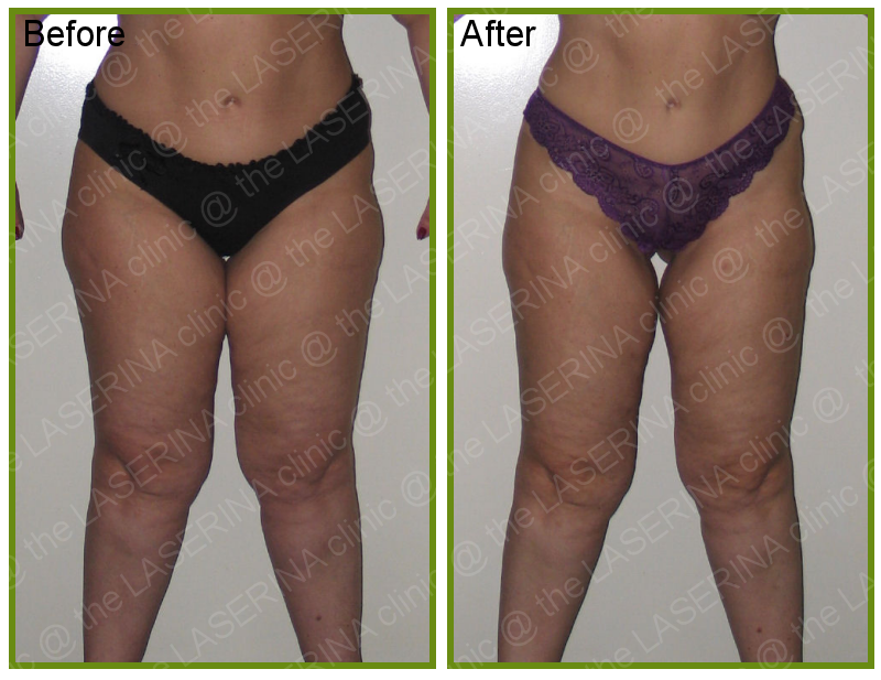 inch loss with LPG Endermologie