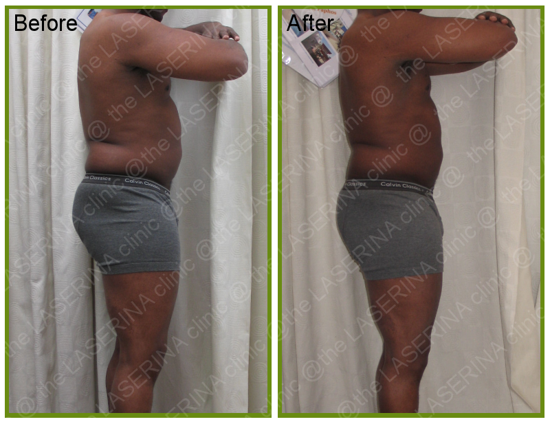 inch loss with Lipomassage by Endermologie