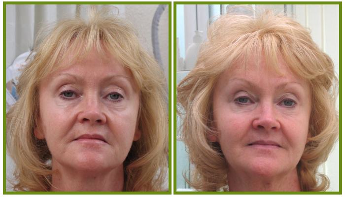 face tightening therapy