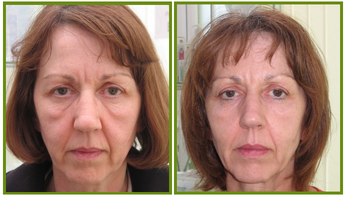 ENDERMOLOGIE face therapy