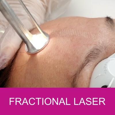 fractional laser resurfacing