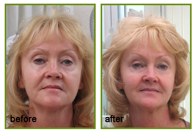 non-surgical Face Lift treatment result