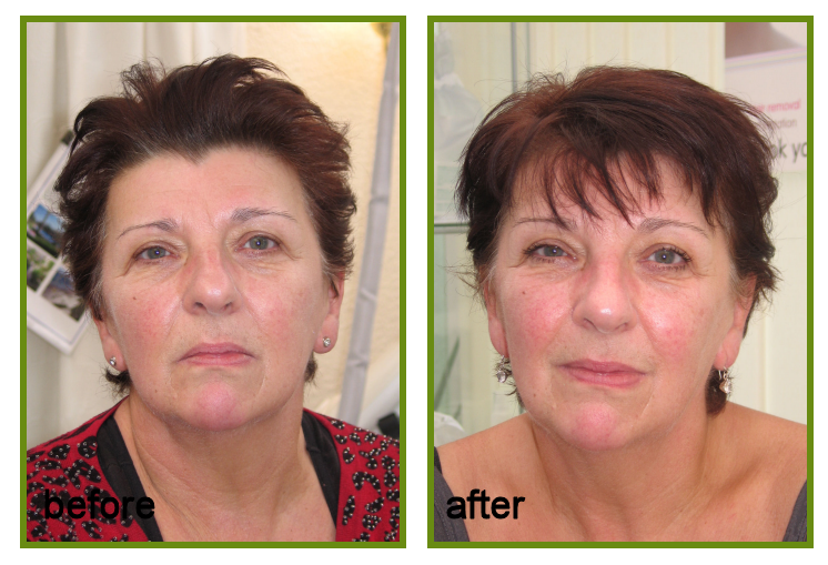 Face Lift and Laser sun damage RESULT