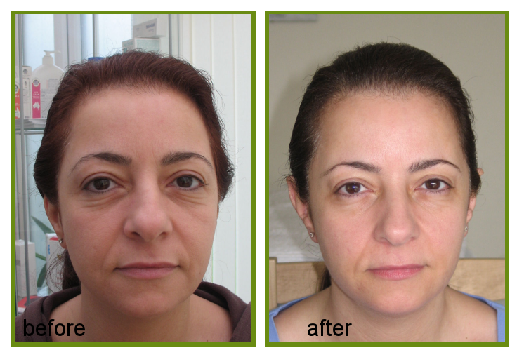 IPL anti ageing treatment result