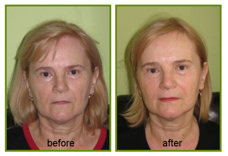anti ageing and sun damage treatment result