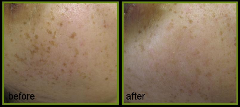 freckles Laser removal