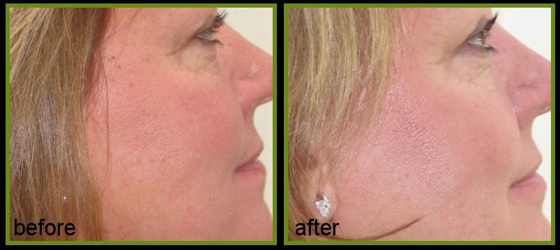 pigmentation IPL treatment