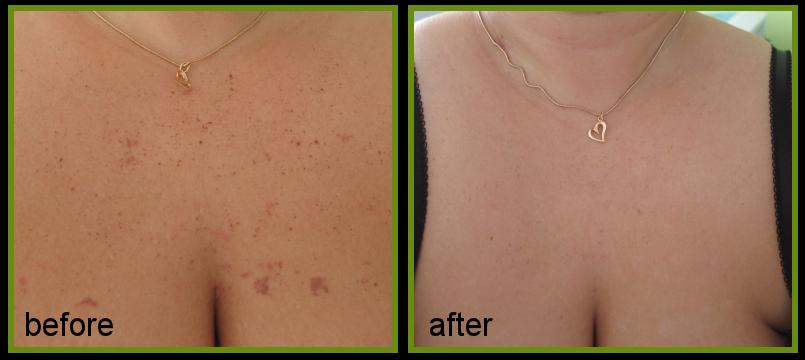 dark spots removal