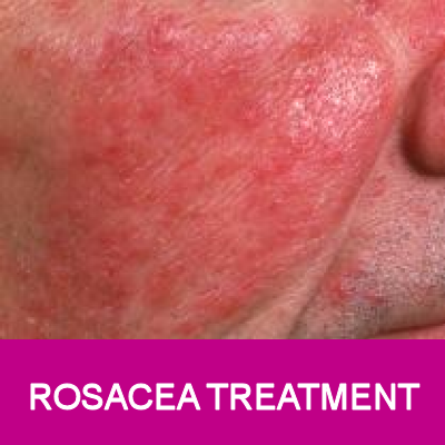 rosacea therapy for face