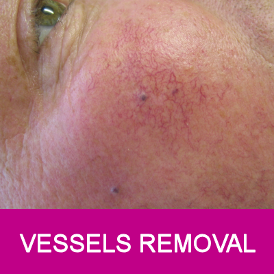 vessels removal for face