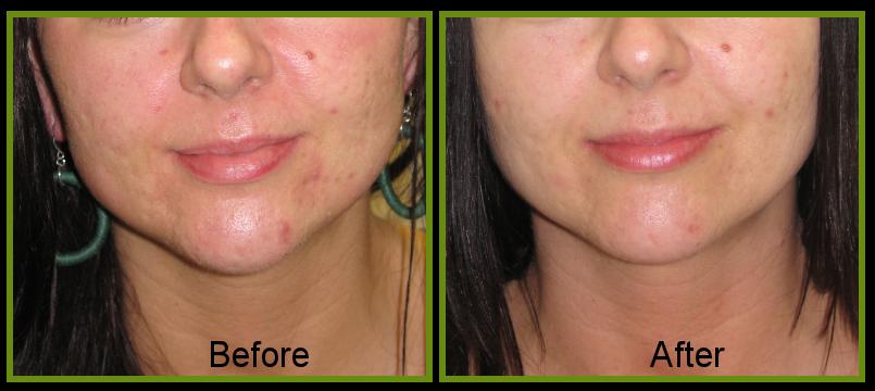 skin texture improvement