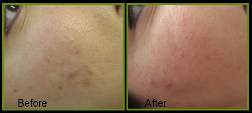 skin quality improvement