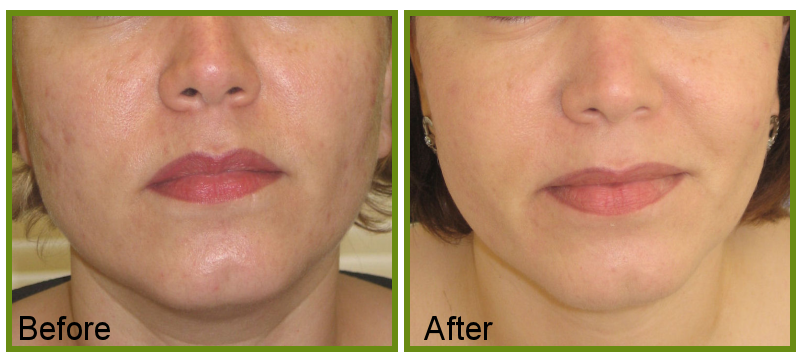 acne scarring treatment