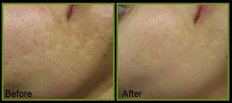 acne scarring skin improvement