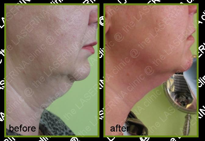 ultrasonic lipo for double chin