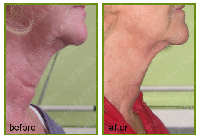 radiofrequency neck treatment