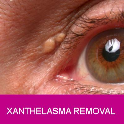 xanthelasma removal
