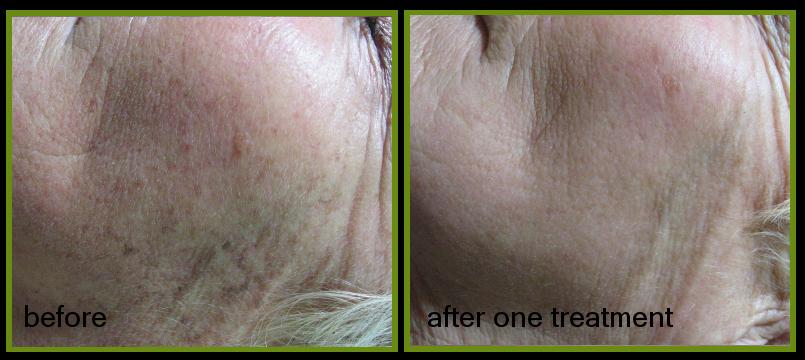 sun damage pigmentation removal