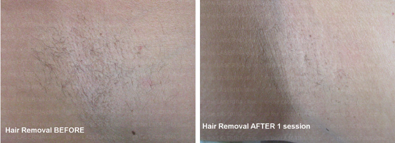 HAIR_REMOVAL_800