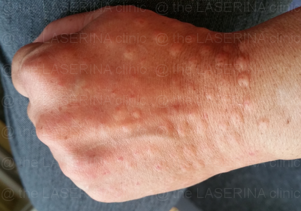 MESOTHERAPY-2nd-treatment-small