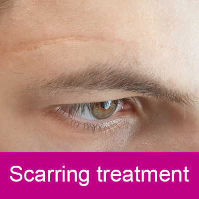 scarring treatments