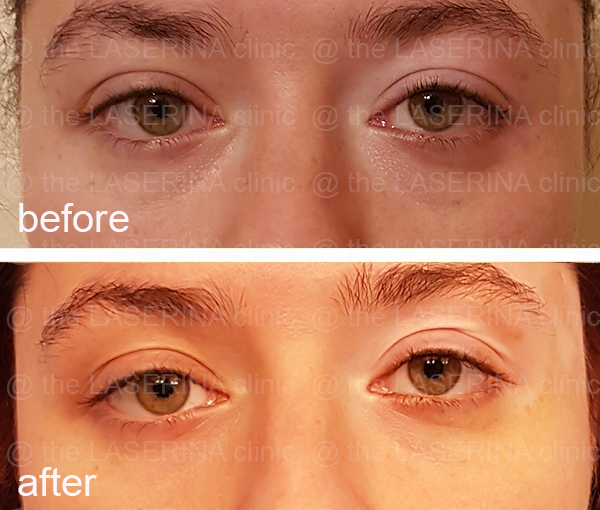 dark circles treatment with PRP