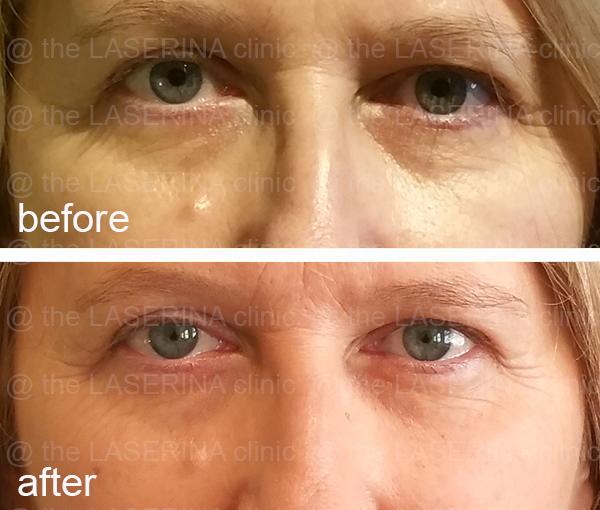 under eye PRP treatment