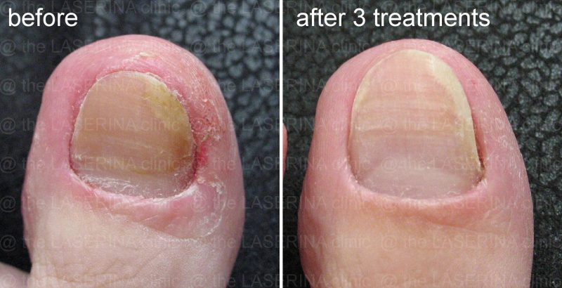 fungal infection therapy