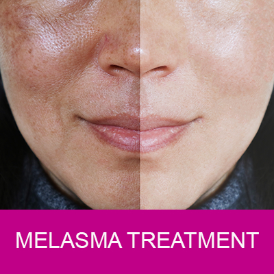 melasma therapy for face