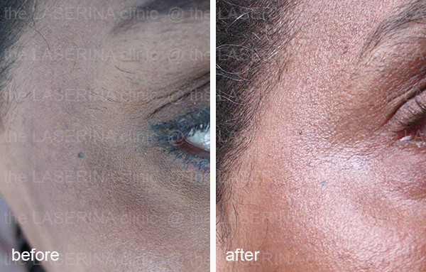glycolic peel for pigmentation