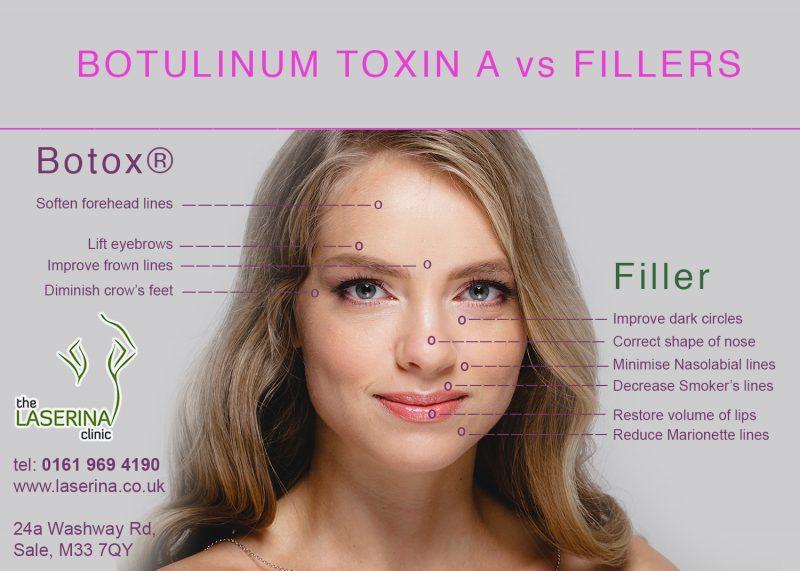 dermal fillers vs botulinum toxin a