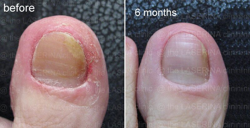 laser fungal nial treatment