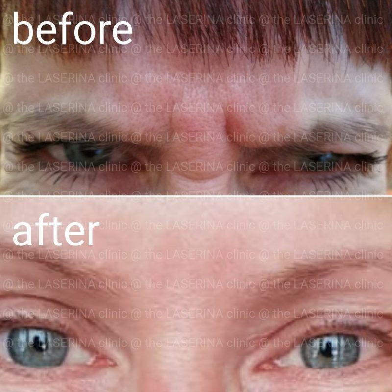 botox for between brows