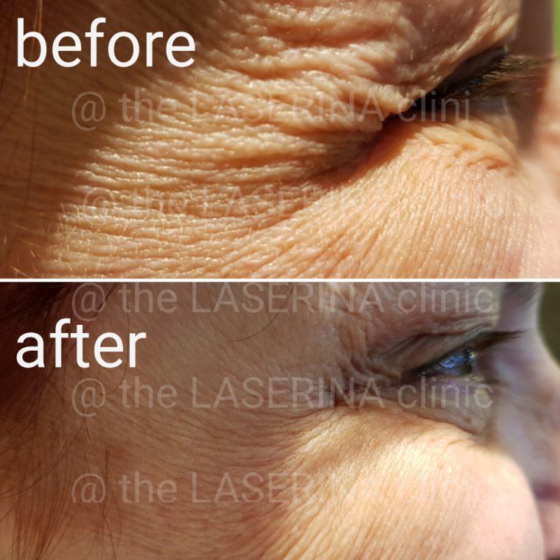 anti-ageing wrinkle eyes