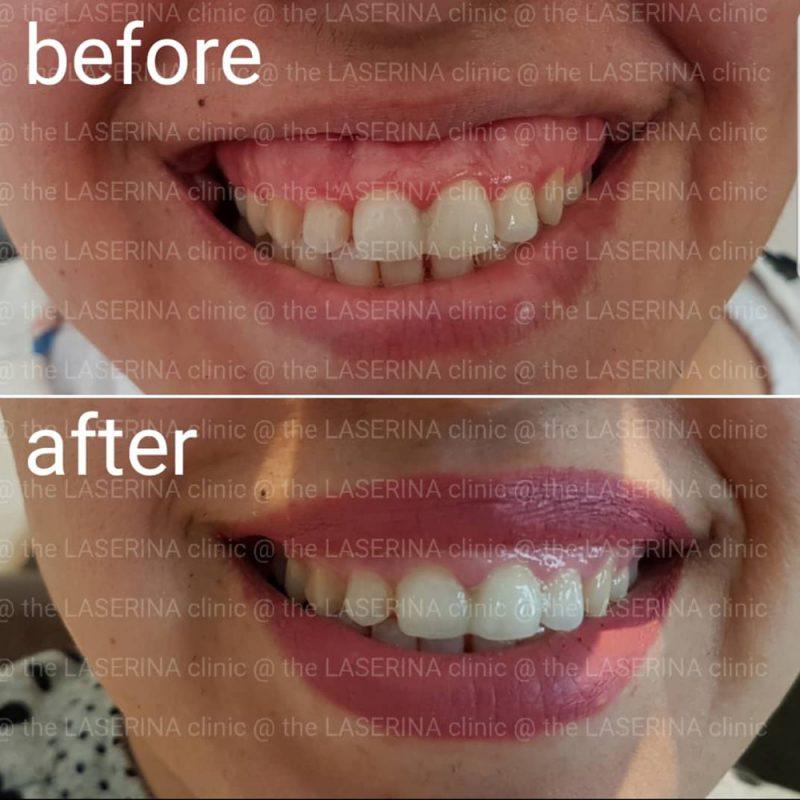 gummy smile botox