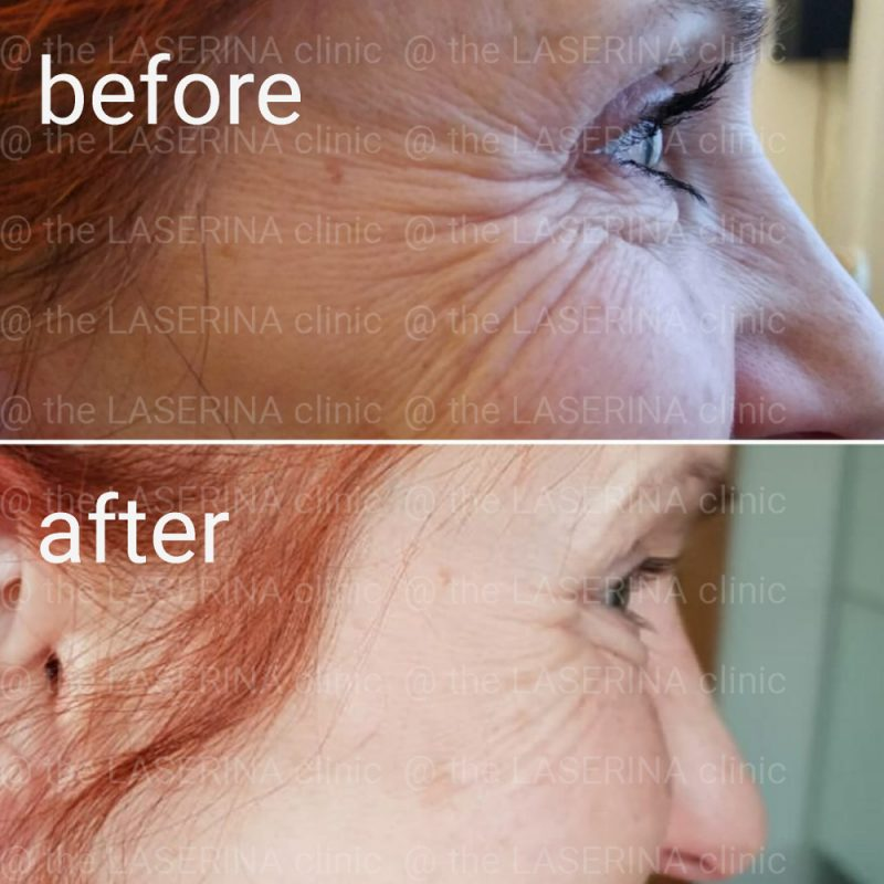 eye wrinkle treatment