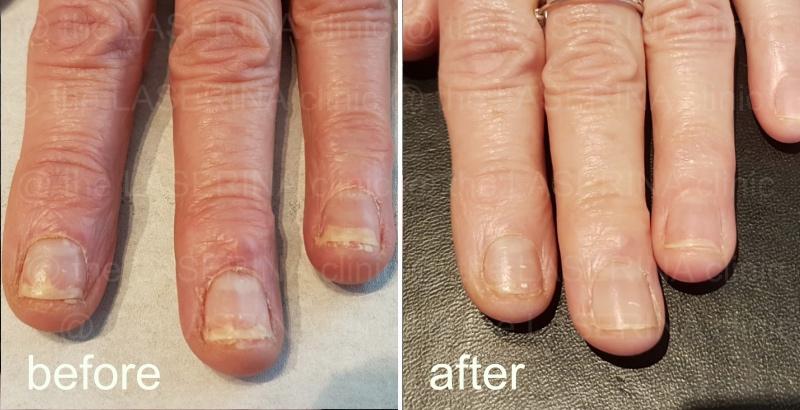 laser fungal nail treatment