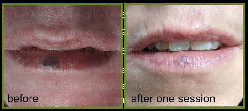 blue vein on the lip