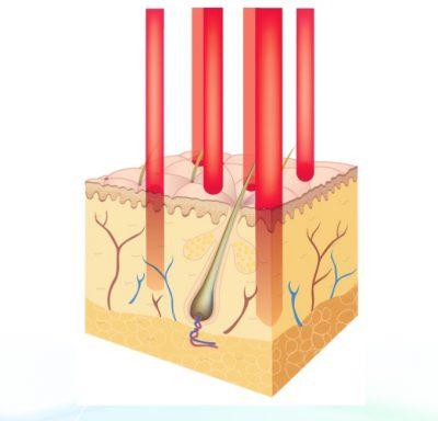 Fractional Laser beams in the skin